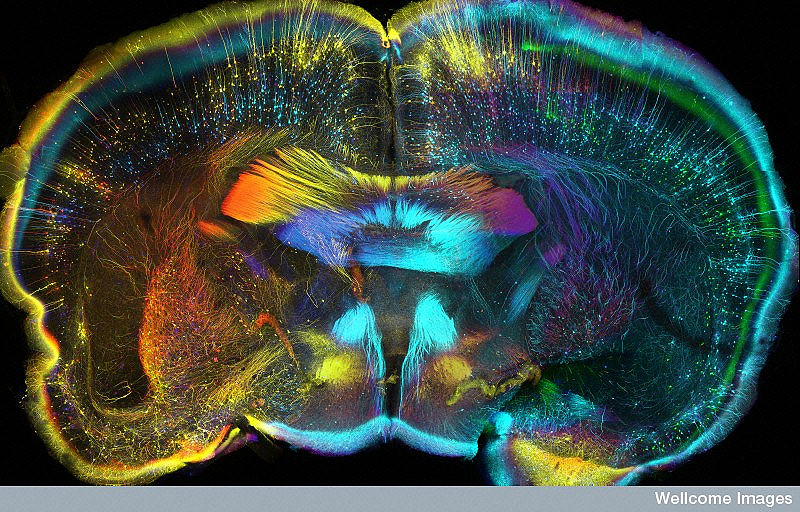 B0009777 Mouse brain, coronal view