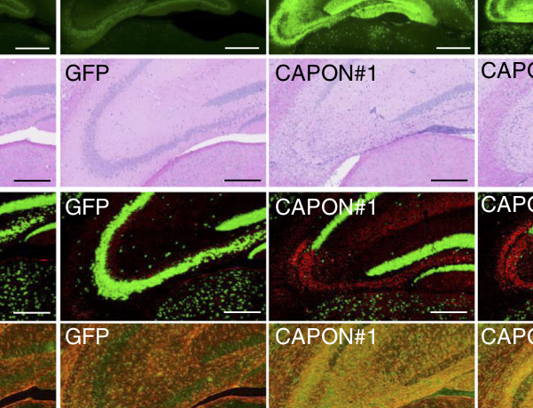 CAPON links Alzheimer's plaques to neurodegeneration