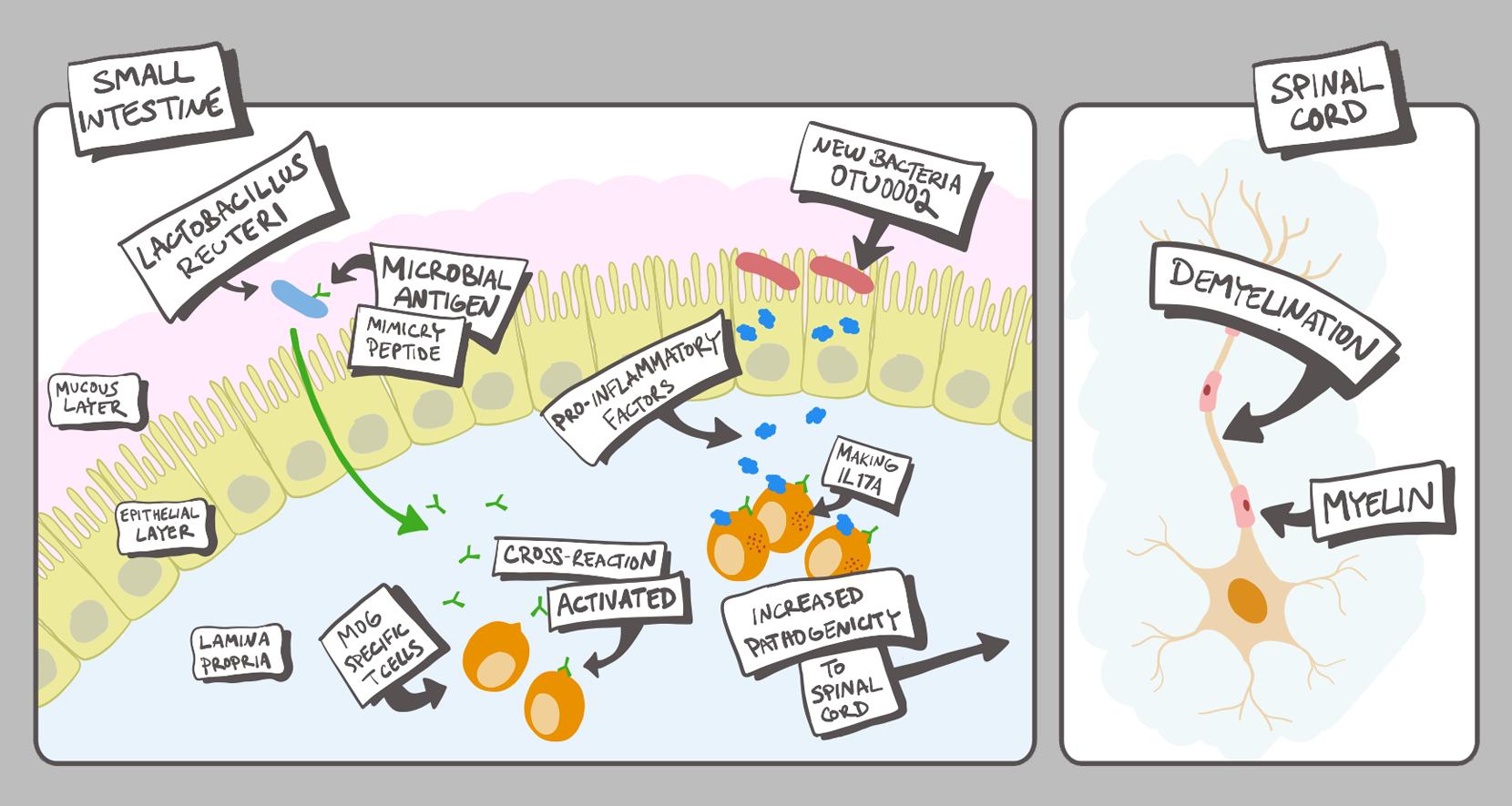 gut bacteria worsen MS