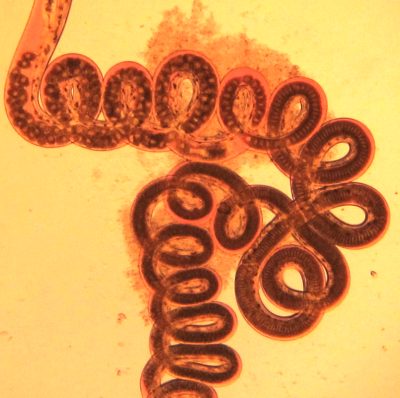 A gut-wrenching defense against parasitic worms