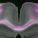 Microcolumns: elementary neuronal units that carpet the (mouse) brain