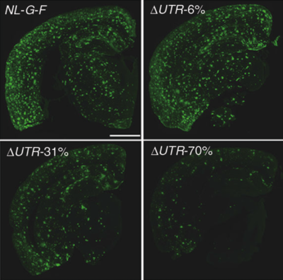 Mutation protects against Alzheimer's disease in mice
