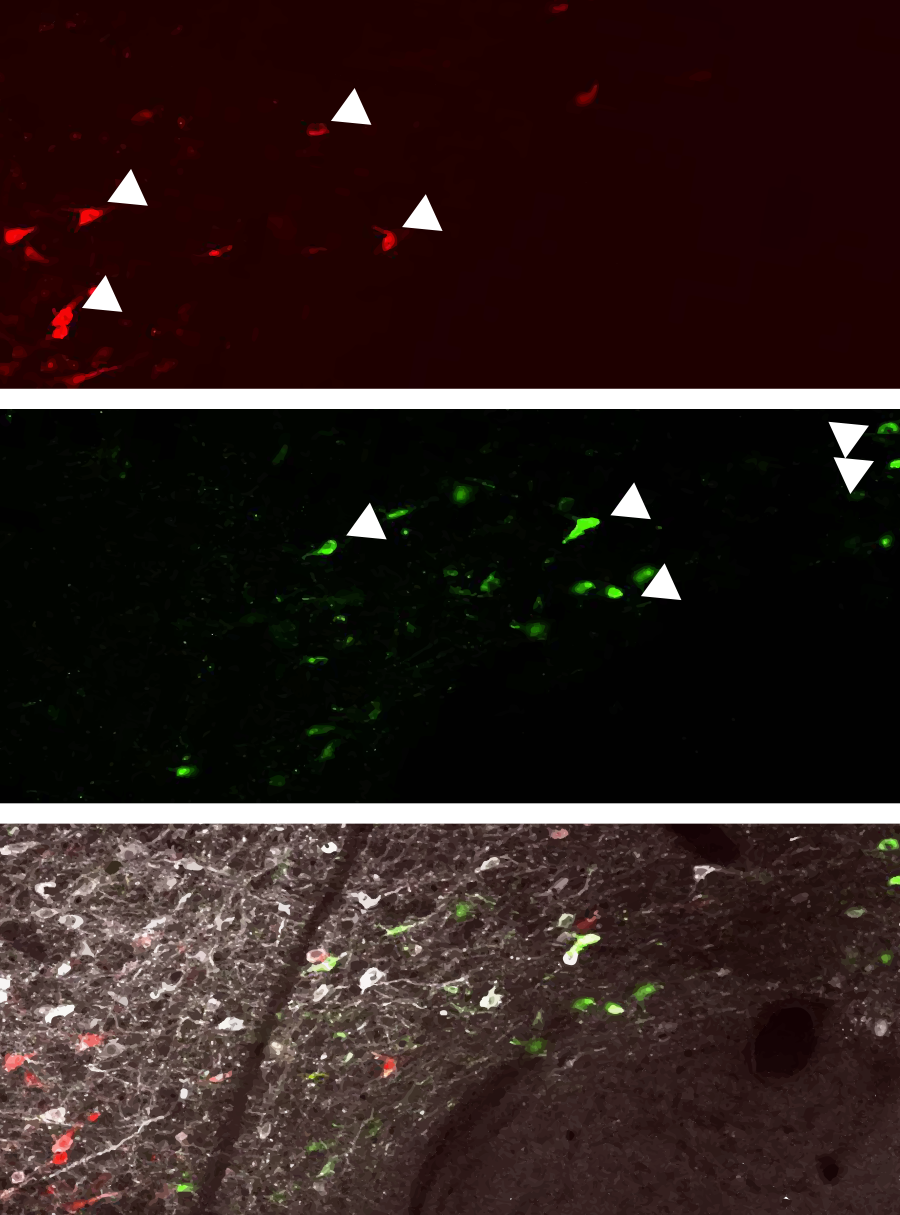 labeled dopamine neurons in the VTA