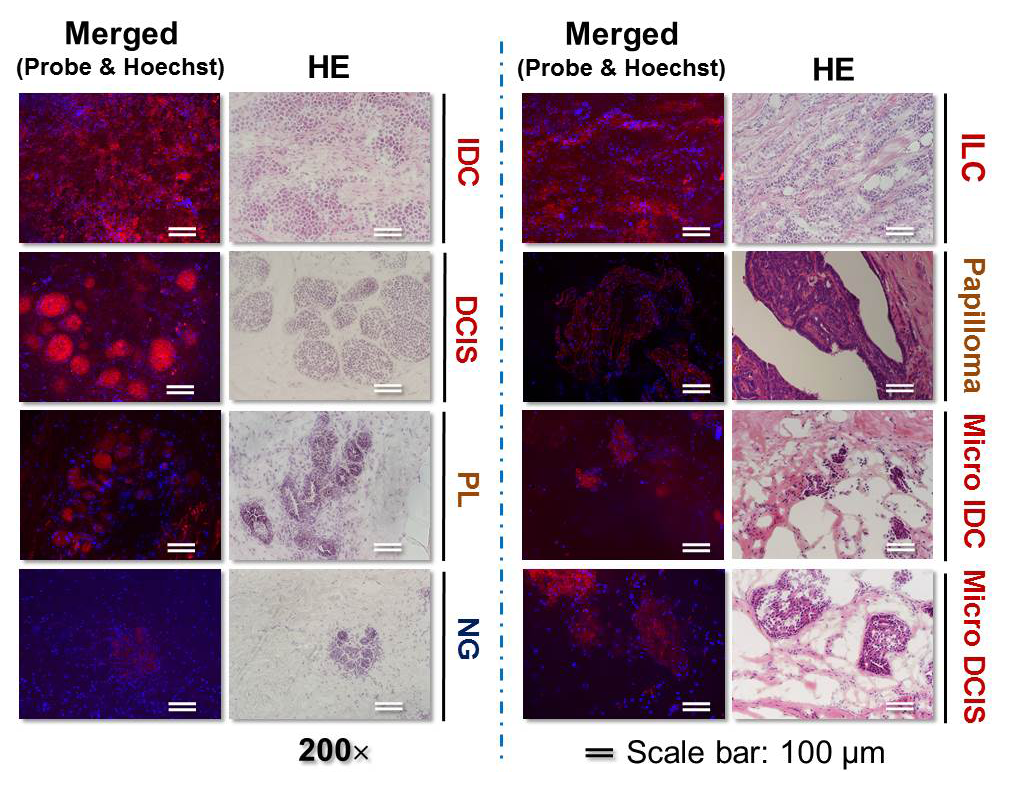 images comparing breast cancer tissue with normal breast tissue