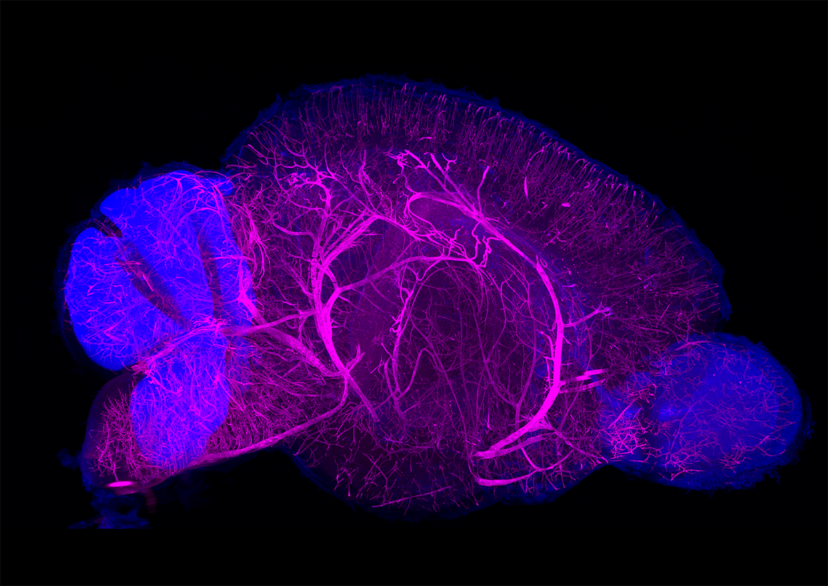CUBIC-HV organ-level view of a mouse brain