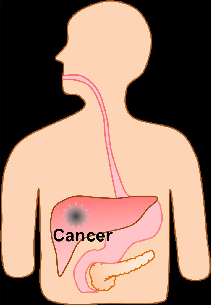 schematic liver cancer