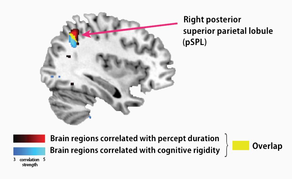 The pSPL correlates with autism symptoms