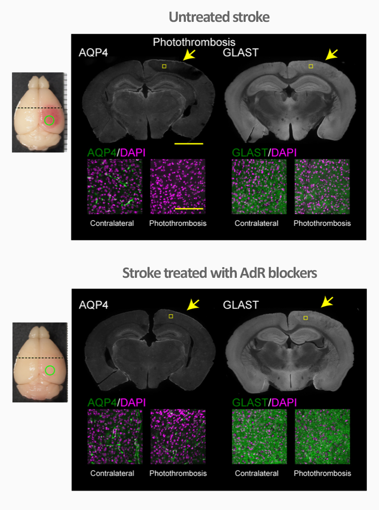AdR blockers reduce stroke damage