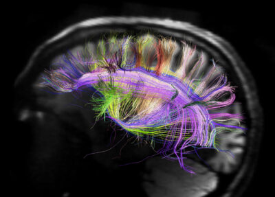 Rainbow engineering to make the brain glow