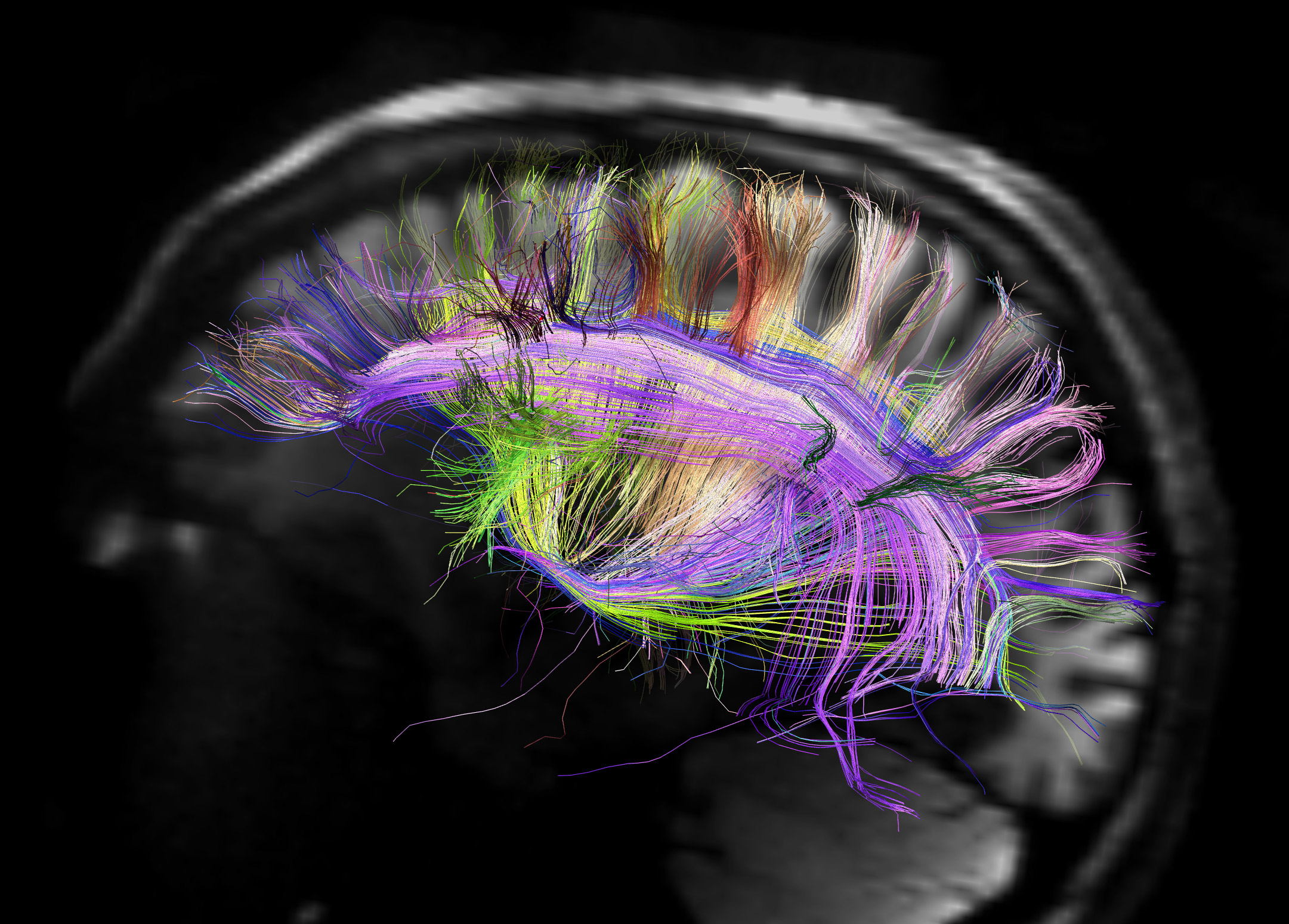 photo of a fluorescently labeled fly brain