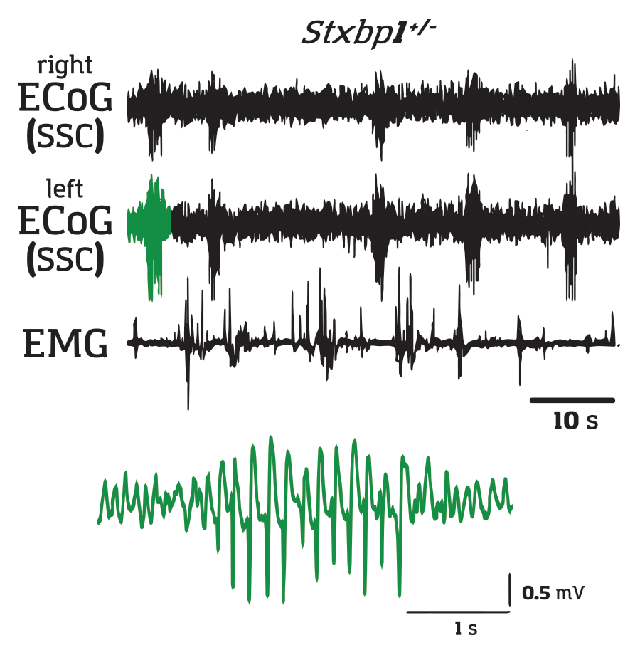 recordings of spike wave discharges