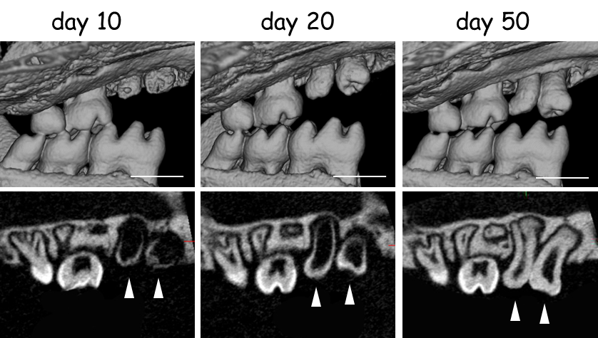 3D (top) and cross-sectional (bottom) CT images of the transplants growing in the jaw.